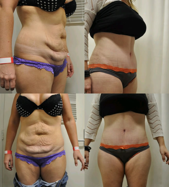 Abdominoplasty Before Amp After