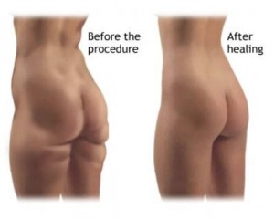 -before-and-after  Vacuum Exercise Before And After