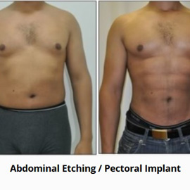 Abdominal Etching & Pectoral Implants - Before & After  