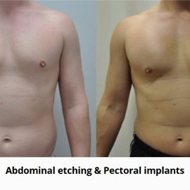 Abdominal Etching Amp Pectoral Implants Before Amp After