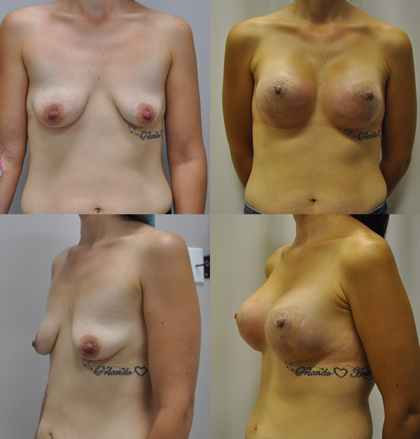 Asian breast augmentation using armpit incisions