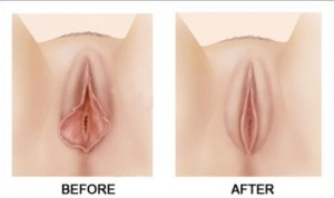 labiaplasty-before-and-after-0