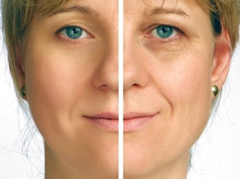 cosmetic-surgery-face-lift