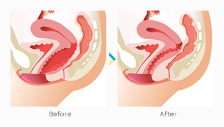 vaginal-tightening-surgery-before-and-after